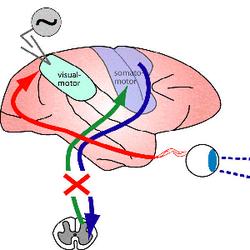 Neuroengineering