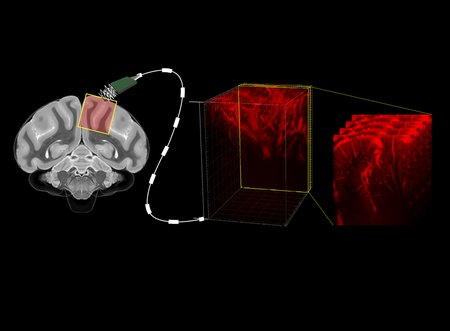 A diagram illustrating a brain connected to a cable, that reads out brain activity and creates maps of the brain's vasculature.